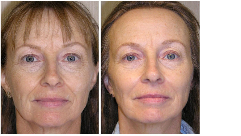 Anti-ageing medicine and orthodontic appliance therapy treatment: An interdisciplinary approach