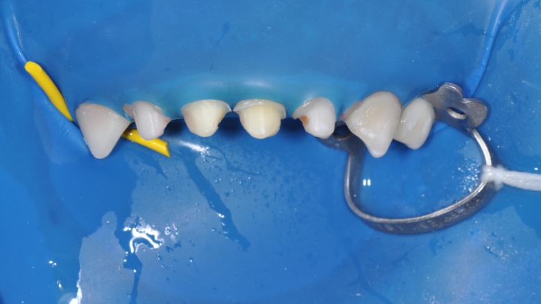 Edelweiss PEDIATRIC CROWNs: A new and innovative approach to restoring primary teeth