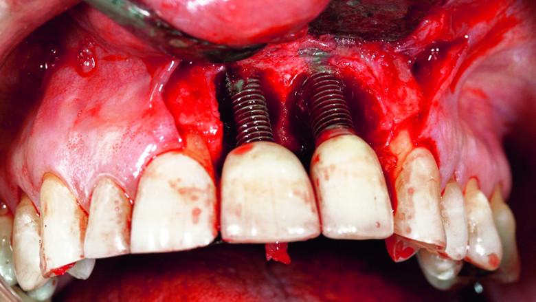 Dentist migration: A forgotten perspective