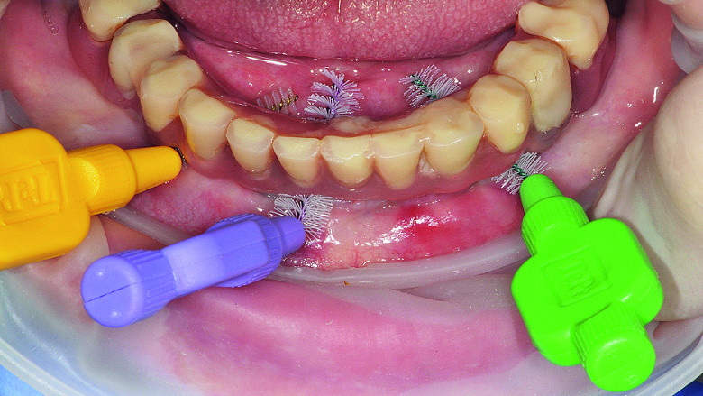 Prevention 0: The best way to prevent peri-implant disease?