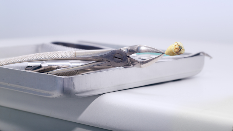 Dental practices urged to install amalgam separator