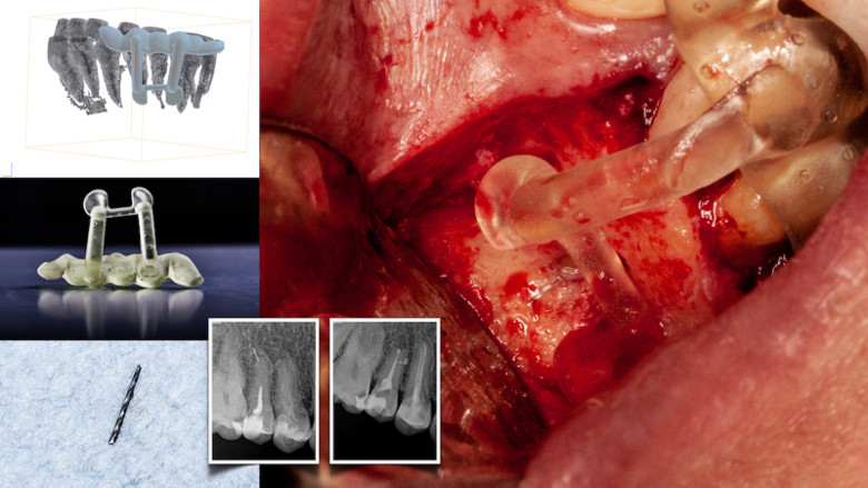 Dynamic navigation—The future of minimally invasive endodontics
