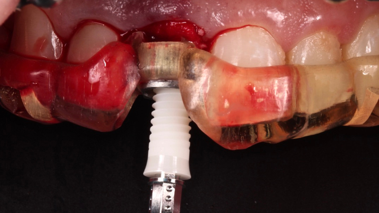 How to attract new patients by offering ceramic dental implants