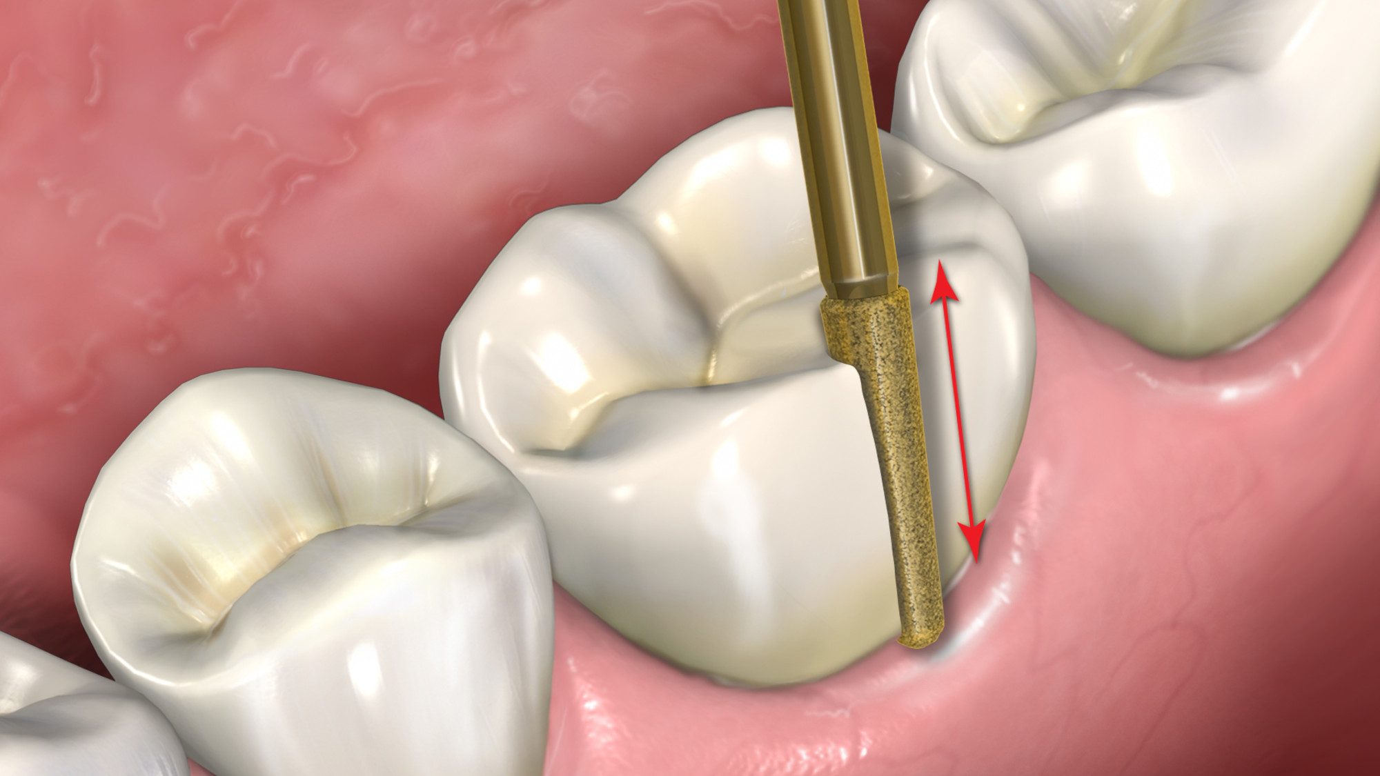 Eliminating the challenges of crown removal or endodontic access through restorations
