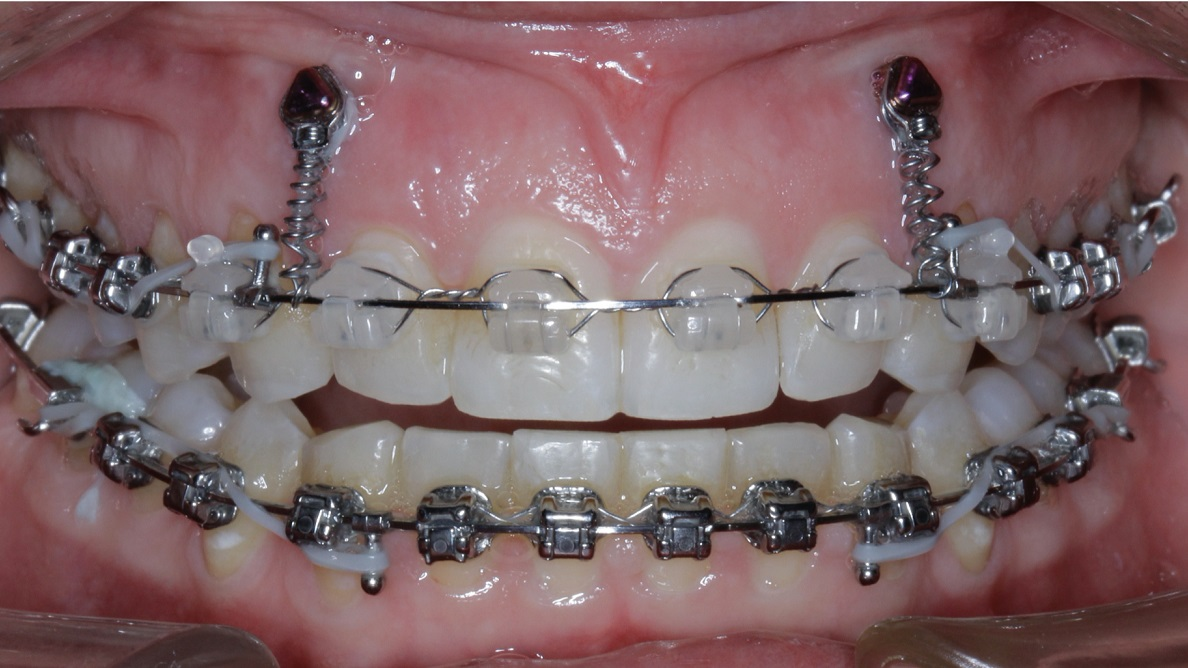 New Age orthodontics and orthopaedics with temporary anchorage devices