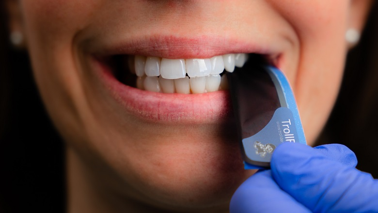 TrollFoil takes the guesswork out of occlusal adjustment