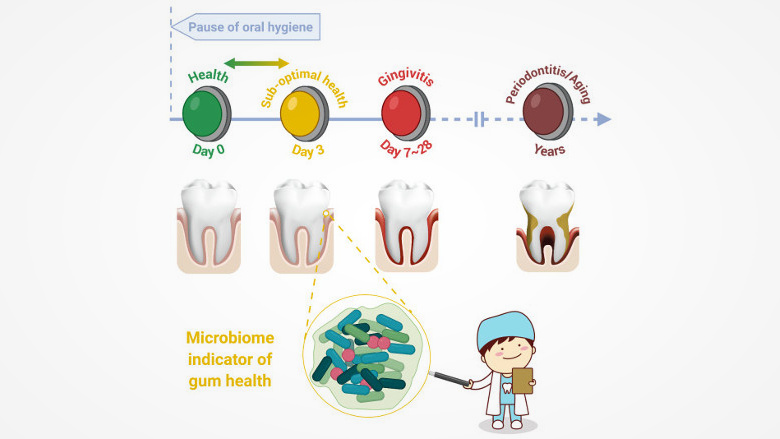 Study identifies asymptomatic state of gingivae that links gingivitis, periodontitis and ageing