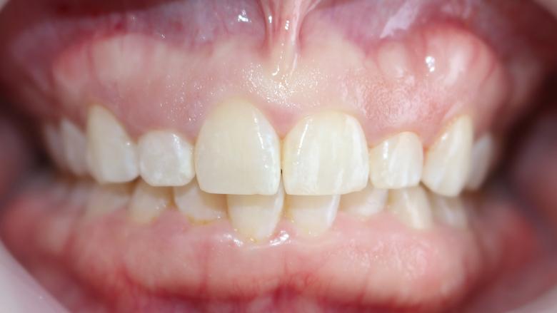 Aesthetic crown lengthening, exostosis removal and veneer restorations